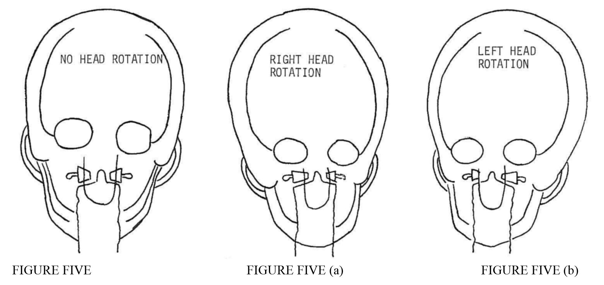 mastoids x ray positioning